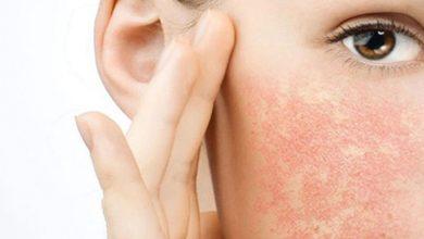 مراقبت پوست خشک و قرمزی و التهاب پوست