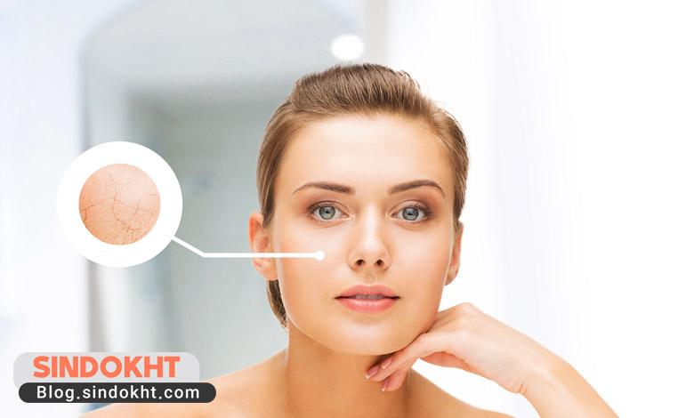 تشخیص نوع پوست در افراد